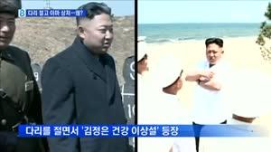 [북한] 다리 절고 이마에 상처 난 김정은…..