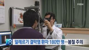 [뉴스8 단신] 알레르기 결막염 환자 180만 명…봄철 '...