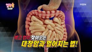 한국인 발생률 세계 1위! 대장암과 ..