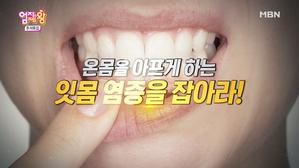 온몸 아프게 하는 잇몸 염증을 잡아라!
